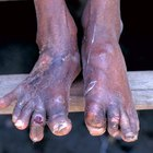 Home remedy for gout in the foot