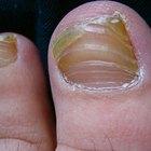 A Nail Fungus Cure Using Vicks