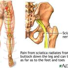 Sciatic nerve pain relief