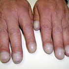 Clubbed Fingers and Heart Disease