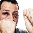 Como disfarçar um olho roxo