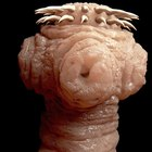 How to identify human intestinal worms