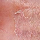 What causes skin to peel on the hands?