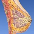 Quais são os tratamentos para abscessos e hematomas nos seios?