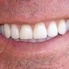 What can you use to whiten dentures?