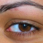 What are the treatments for a swollen itchy eyelid?