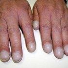 Baqueteamento dos dedos e doença cardíaca
