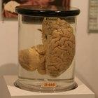 O que é pressão de perfusão cerebral?