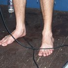 What Is Peroneal Neuropathy?