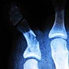O que é esclerose óssea?