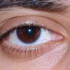 Redness on Eye Rim