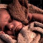 O que é uma hiperextensão do pescoço em bebês prematuros?
