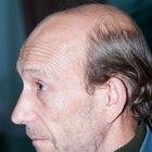 Tratamiento para el pelo de aceite de castor y yodo