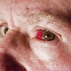 Effects of asbestos on the eyes