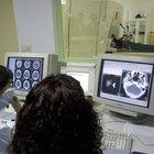 Cuánto gana al año un tecnólogo en medicina nuclear