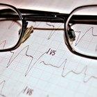 Volume sistólico: Calcule a quantidade de sangue que sai do seu coração