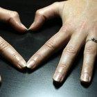 Cómo promover el crecimiento rápido de las uñas