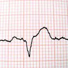 What causes an erratic heartbeat?
