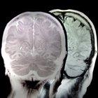 What Are Mini Seizures?