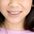 Desarrollo del espacio entre los dientes en los niños
