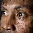 Removendo verrugas do rosto