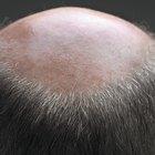 Quais problemas no couro cabeludo são comuns em idosos?