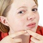 Tratando a acne com doxiciclina