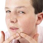 Um nível alto de testosterona pode causar acne nas costas?