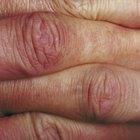 How to treat swollen knuckles