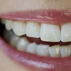 How to remove tooth tartar at home