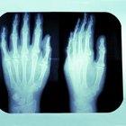 Actividades para aprender sobre los huesos humanos