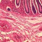 What is ischemic bowel disease?
