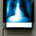 ¿Qué grado necesitas para ser un técnico radiólogo?