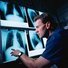 As desvantagens de ser um técnico em radiologia