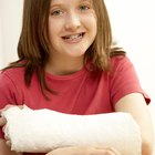 How to remove a synthetic plaster cast
