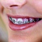 Como fazer brackets para aparelho bucal falso