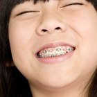Orthodontic Assistant Salaries Vs. Oral Surgery Assistant Salaries