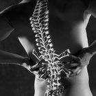 Alívio da dor no cóccix