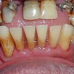 Severe case of gum disease (photo courtesy of drfaithbuilt.com)