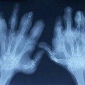 Arthritis Symptoms in the Fingers