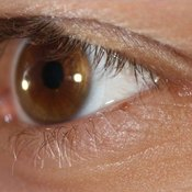 What Are Prednisolone Eye Drops Used For?