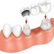 Clean Dental Bridges