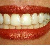 How Do Dentists Clean Teeth?