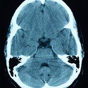 Brain Cyst Treatments