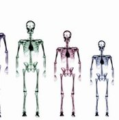 Human skeletons on a chart.