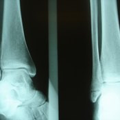 Aircasts are used to treat injuries ranging from minor sprains to major fractures.