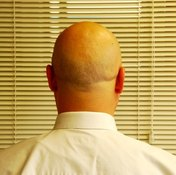 There are many different conditions or problems associated with the scalp.