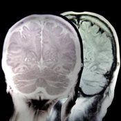 The brain is composed of 100 billion nerve cells.