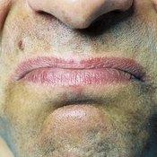 Metallic Taste in Mouth Symptoms