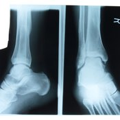 Leg weights can cause ankle injuries and other problems.